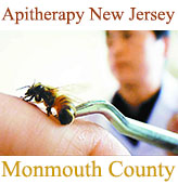 Апитерапия, лечение пчелоужалениями, Monmouth County, New Jersey